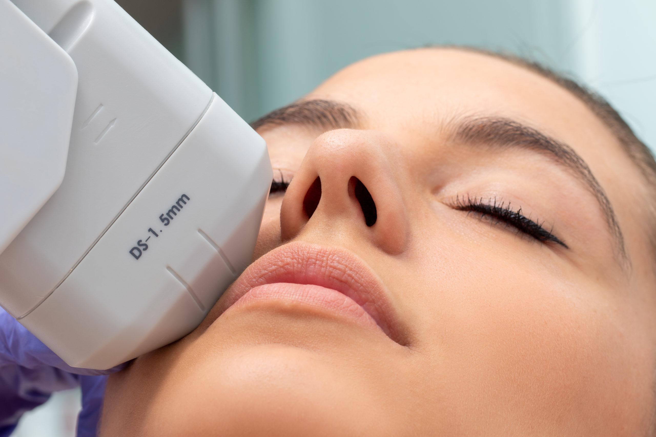 Extreme close up of HiFu treatment on face